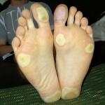 Effects of 5FU on my feet.